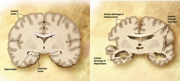 02-alzheimers_disease_brain_comparison