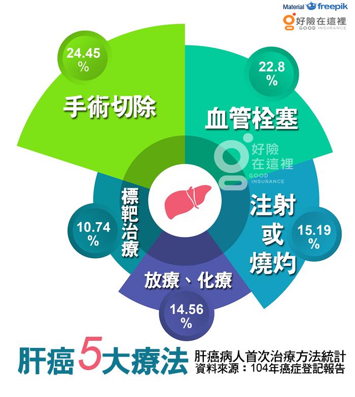 肝癌五大療法