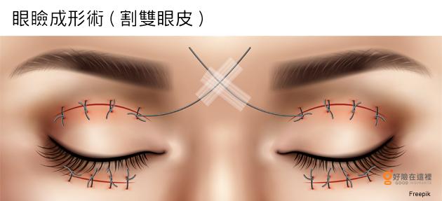 費用 眼瞼 下垂 手術